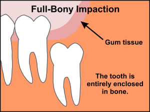 Full Bony Wisdom Tooth | Best Dental in Houston, TX