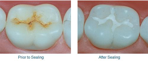 tooth_sealing_2