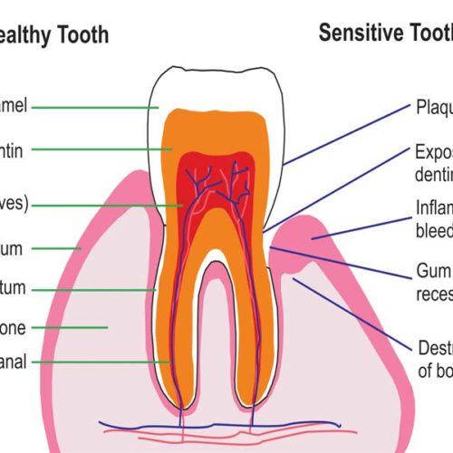 Temperature Sensitive Teeth