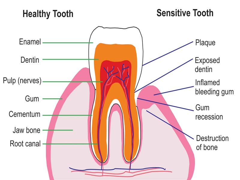 featured-Healthy-vs.-Unhealthy-Tooth