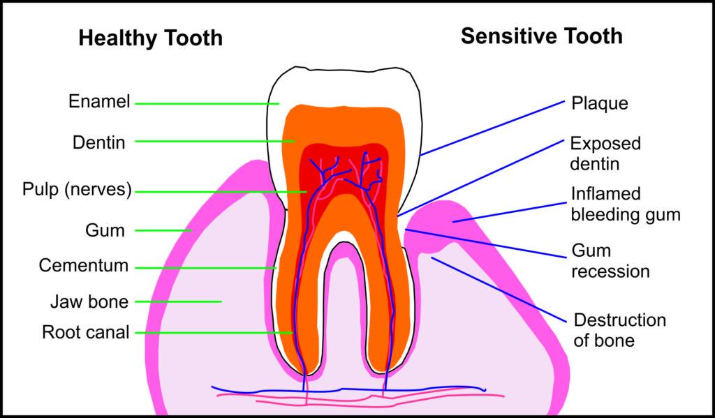 healthy_unhealthy_tooth
