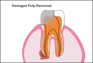 damaged_pulp_removed
