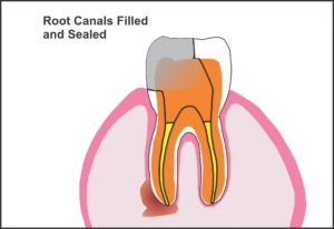 root_canals_filled