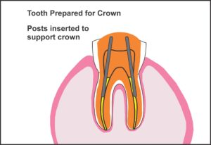 tooth_prepared_for_crown