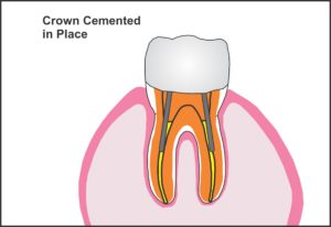 crown_cemented_in_place