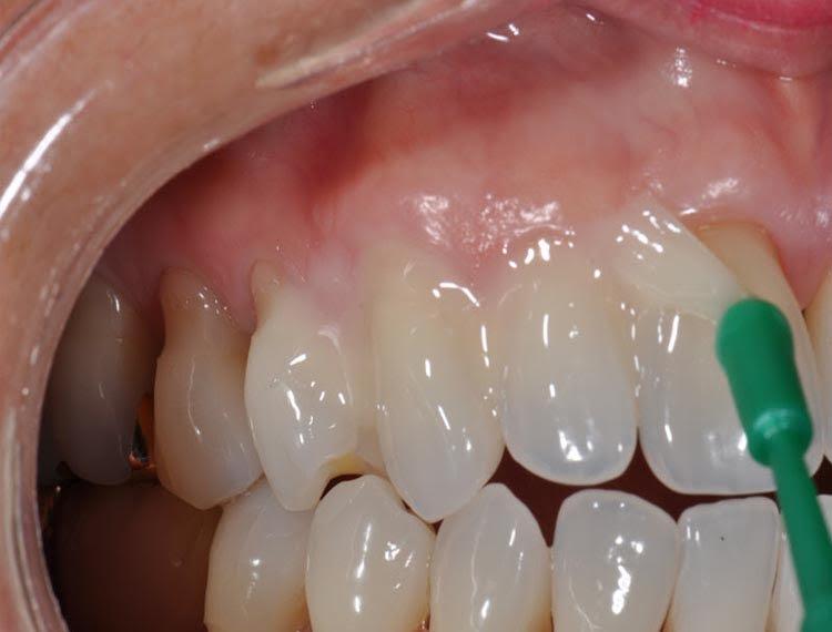 sencitive teeth