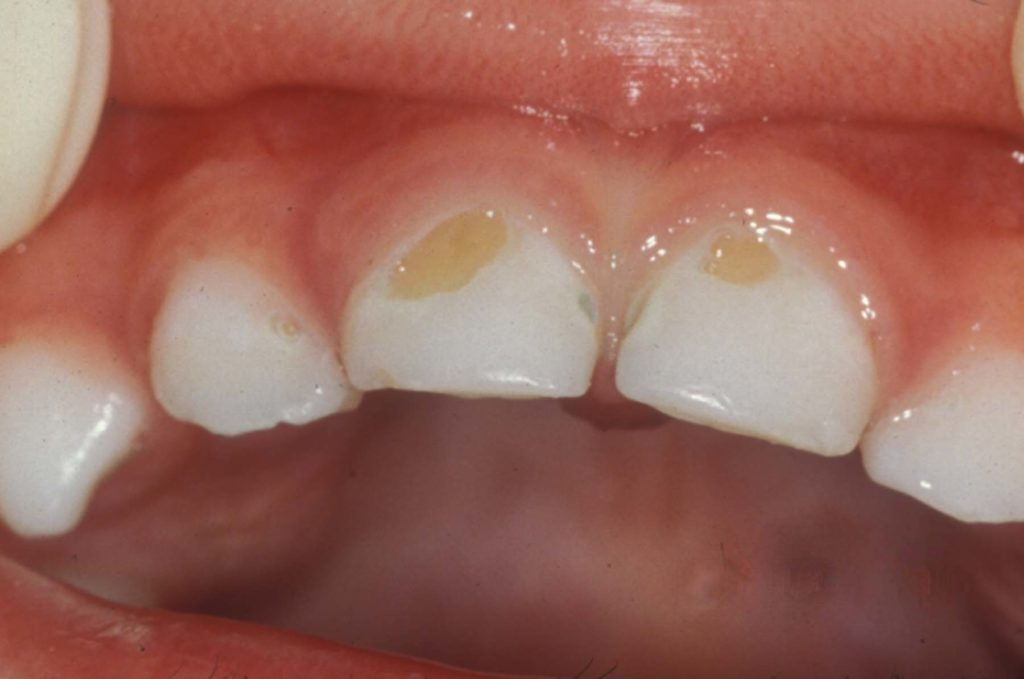 dental_caries_in_children
