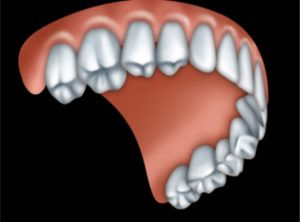 full_upper_denture