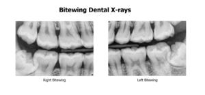 bitewing_dental_x-ray