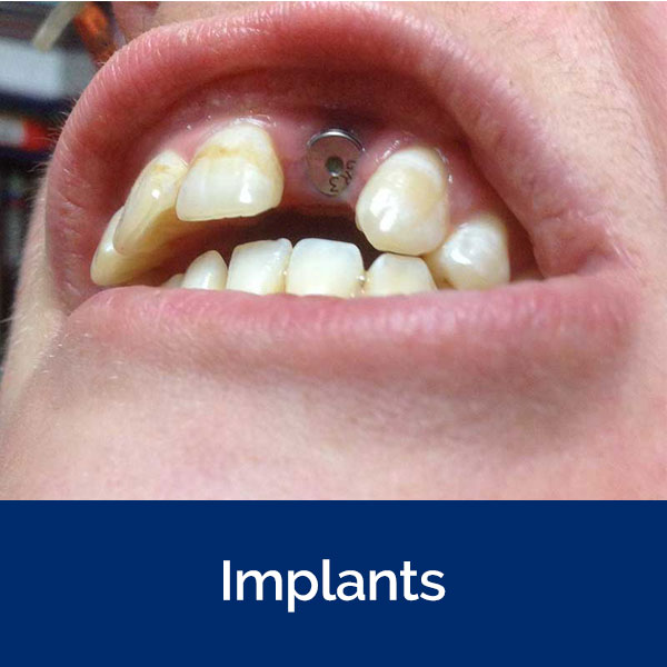 section-implants