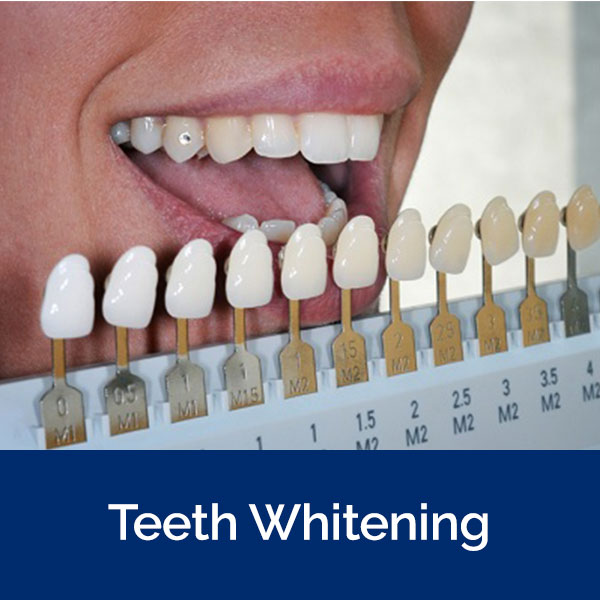 section-whitening