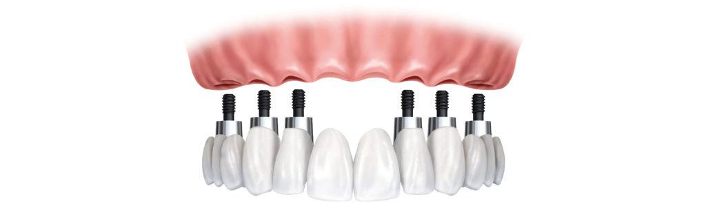 dental-implant-supported-denture