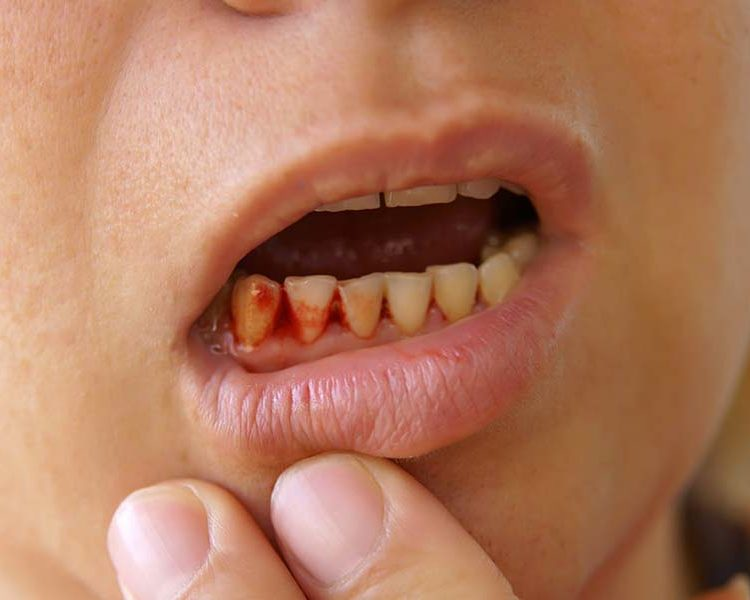Dealing with Bleeding Gums
