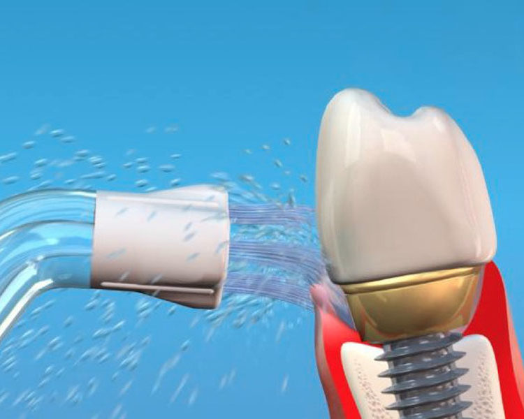 Care of Dental Implants