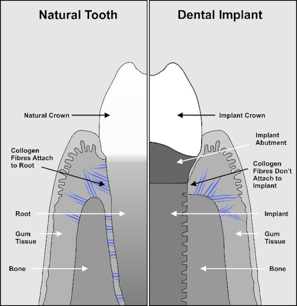 natural tooth versus implant