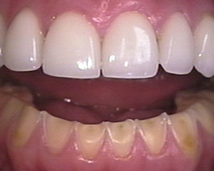 Erosive Tooth Wear